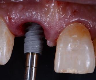 Odontología conservadora: Tratamientos de Clínica Dental Tàrrega - Guissona