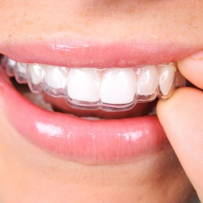 La ortodoncia invisible: todo sobre su funcionamiento