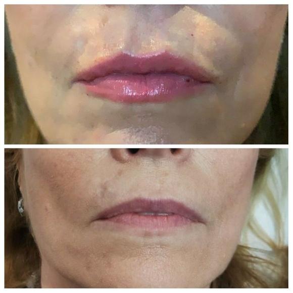 Relleno de labios: Tratamientos y Productos de Odontología Integral Fernando Román