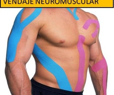 Vendales neuromusculares