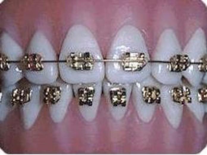 Ortodoncia: Catálogo de Clínica Dental Dra. Miriam Signorini