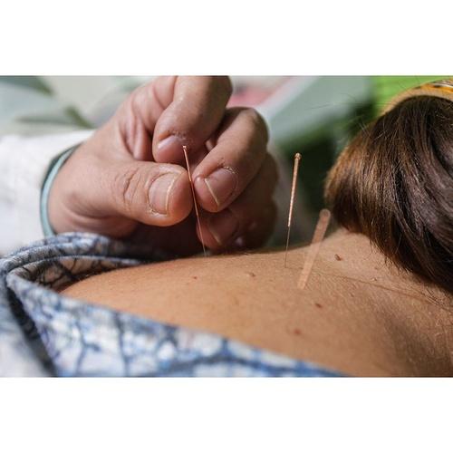 Medicina integrativa y acupuntura en Granada