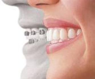 PRÓTESIS DENTALES: ESPECIALIDADES de Clínica Dental Morey