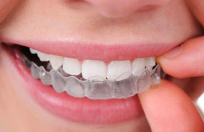 ortodoncia invisible valencia, invisalign valencia, clinica dental valencia, alineadent valencia, invisalign silla, alineadent silla, ortodoncia invisible silla