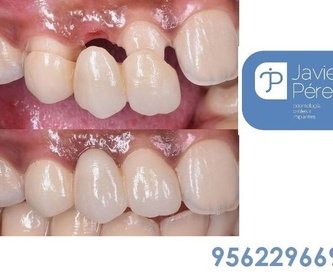 Reducción del tipo de IVA servicios de suministro eléctrico y de agua al 4%: Servicios   de Clínica Dental Dr. Javier Pérez Martínez