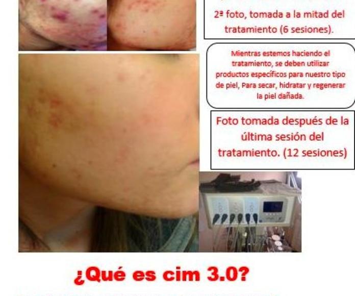 Tratamiento del Acné en Oviedo