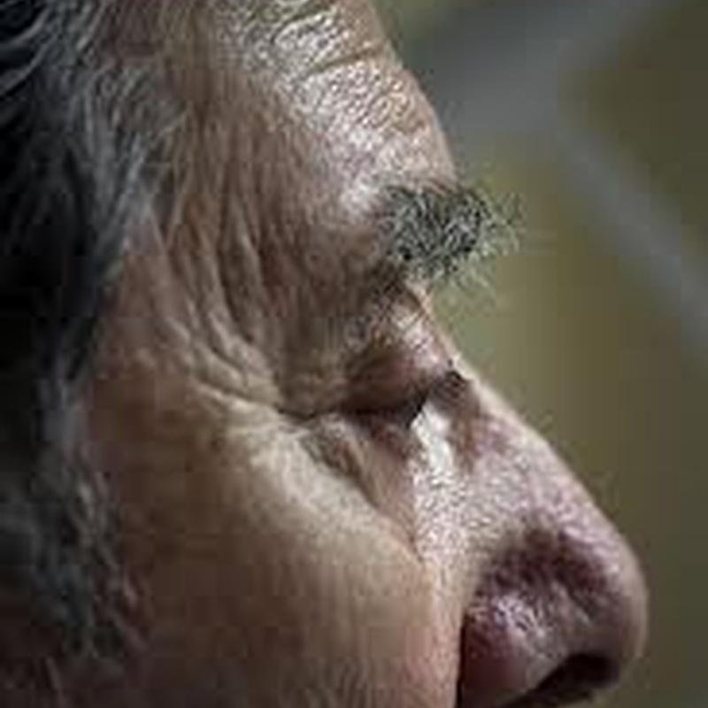 Demencia: Catálogo de Consulta De Psicología Mercedes Cañadas