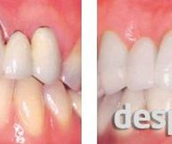 Fundas de Zirconio: Tratamientos dentales de Clínica Dental Llanos
