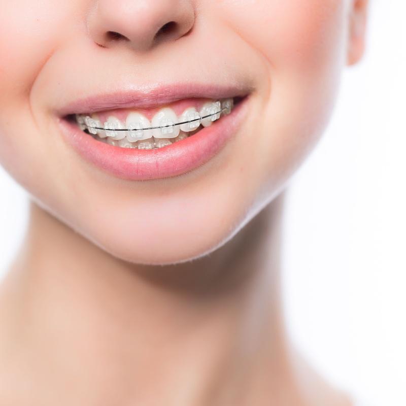 Ortodoncia: Servicios de NONTOLdent
