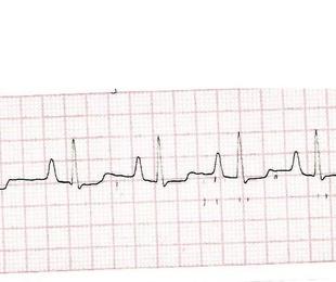 Servicio de Cardiología