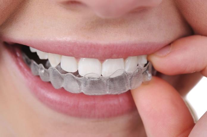 Ortodoncia invisible Barcelona|clinica Esteve Padros