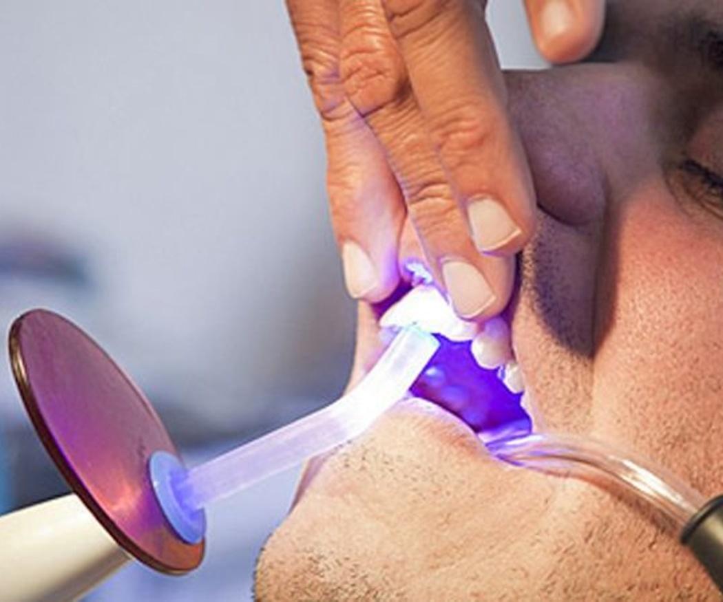 Ventajas del blanqueamiento dental led