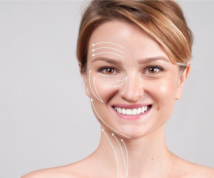 Lifting facial: Tratamientos estéticos de Odex Corporación