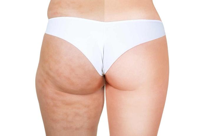 Mesoterapia corporal: Tratamientos de Centro de Estética Mª Carmen