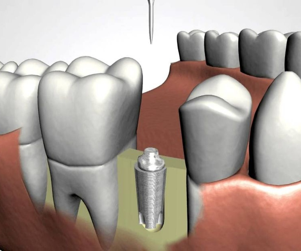 ¿Son molestos los implantes dentales?