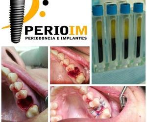 Todos los productos y servicios de Clínicas dentales: Perioim