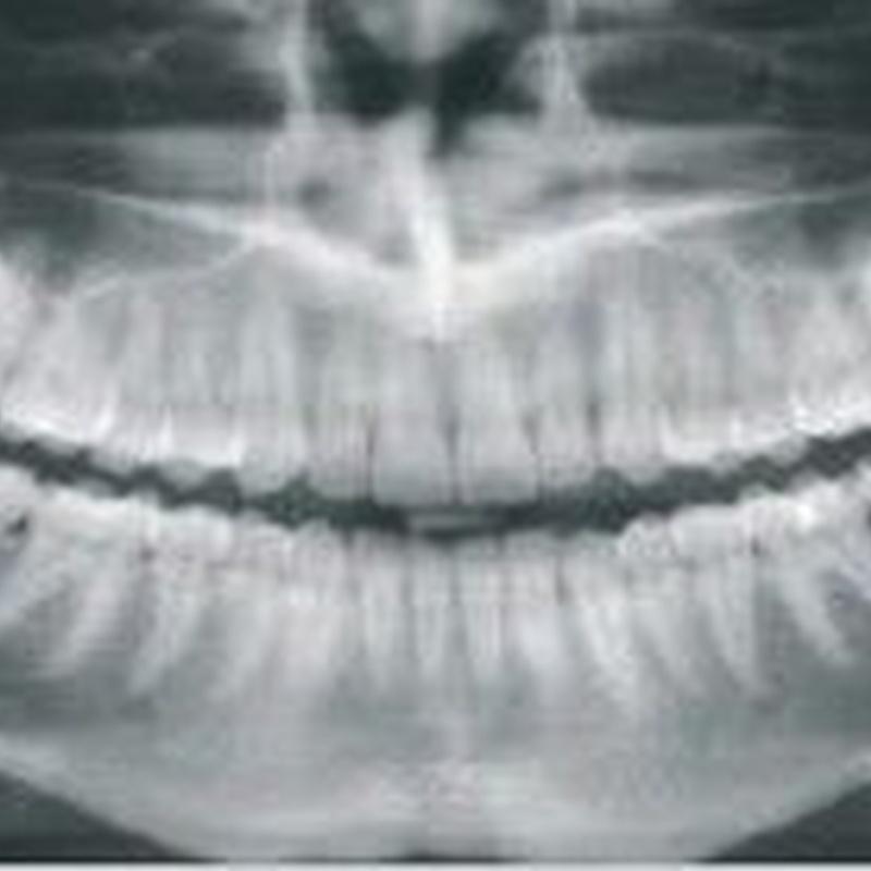 Radiografías panorámicas: Servicios de MAG Clínica Estético Dental