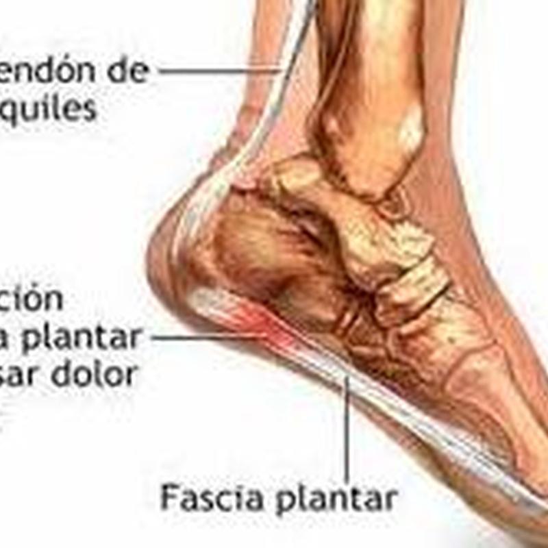 Fascitis Plantar: Cirugía del Pie de Clínica Podológica José Mª Pe Duarte