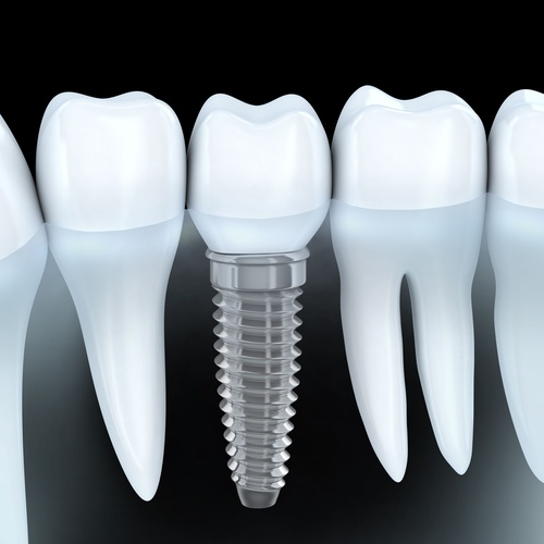 Implantes dentales en Albacete