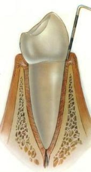 PERIODONCIA: SERVICIOS de Clínica Dental Basauri