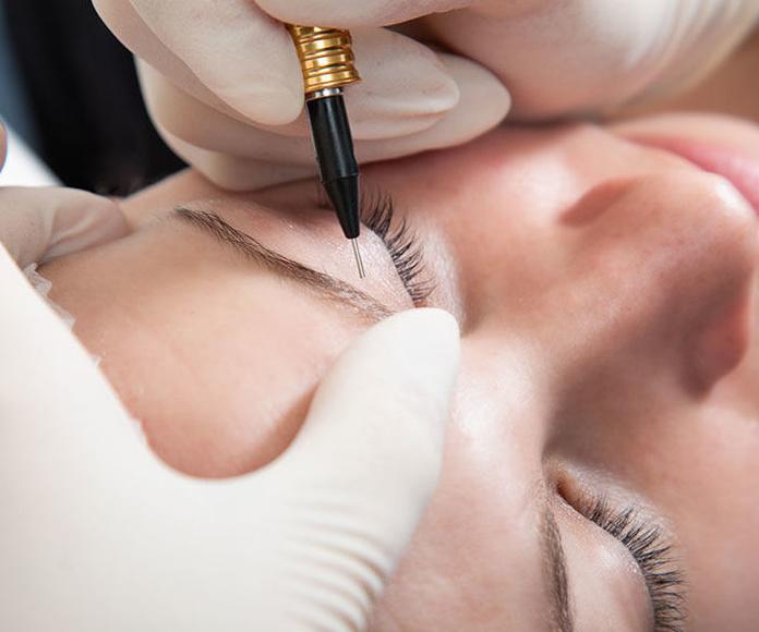 DEPILACIÓN ELECTRICA: Tratamientos de Centro de belleza y medicina estética Lucy Lara
