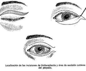 Cirugía de la cara: Dr. Vila Moriente, J.L. CIRUJANO PLASTICO