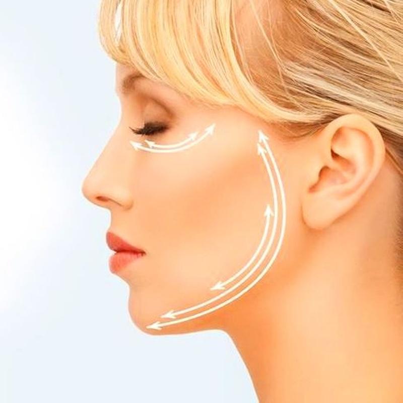 Lifting Facial, Access Facelift, Alicante, shambhala. Rejuvenecimiento