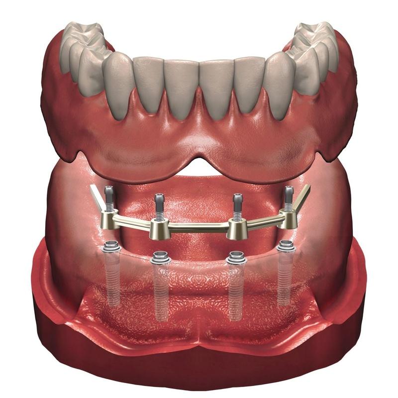 SOBREDENTADURAS SOBRE IMPLANTES: Tratamientos de Clínica Dental Ángel Artiz