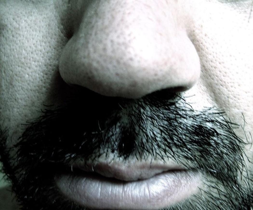 Rinoplastia para mejorar los trastornos del sueño