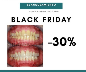 BLACK FRIDAY | BLANQUEAMIENTO DENTAL