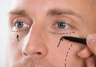 Corrección de arrugas con infiltraciones