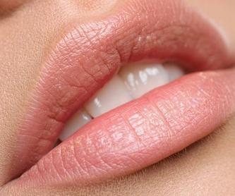 Ortodoncia Transparente.: Tratamientos de Clínica Dental Dra. Ana Lucía