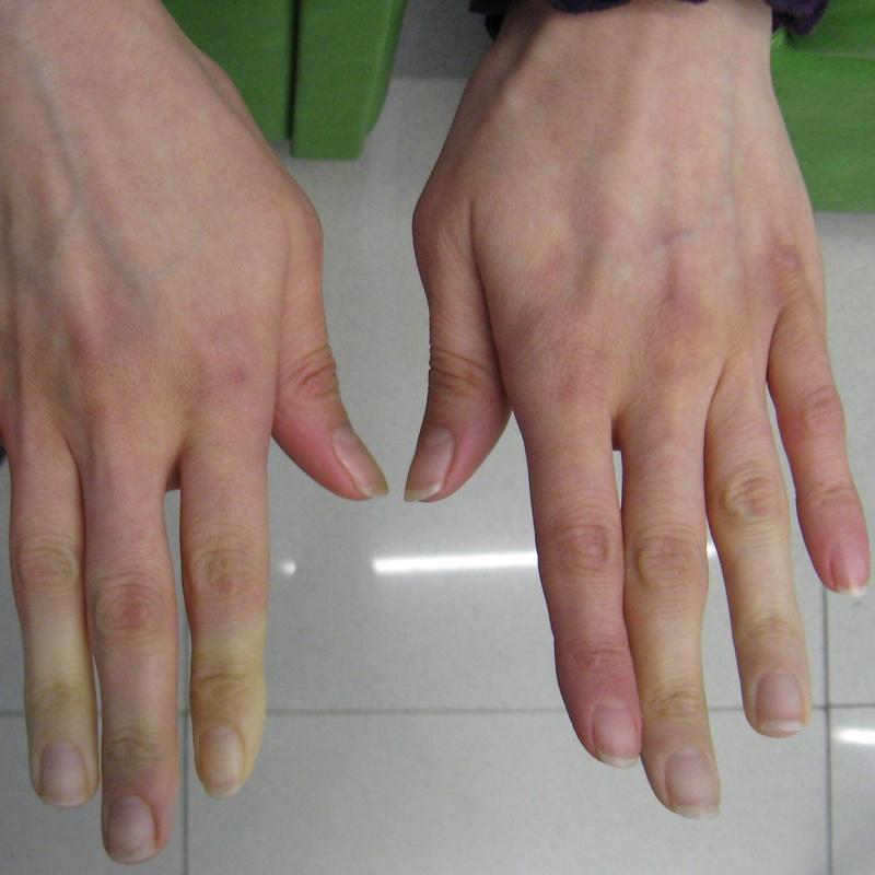 Fisioterapia reumatológica : Tratamientos de Fisioterapia T-Cuida