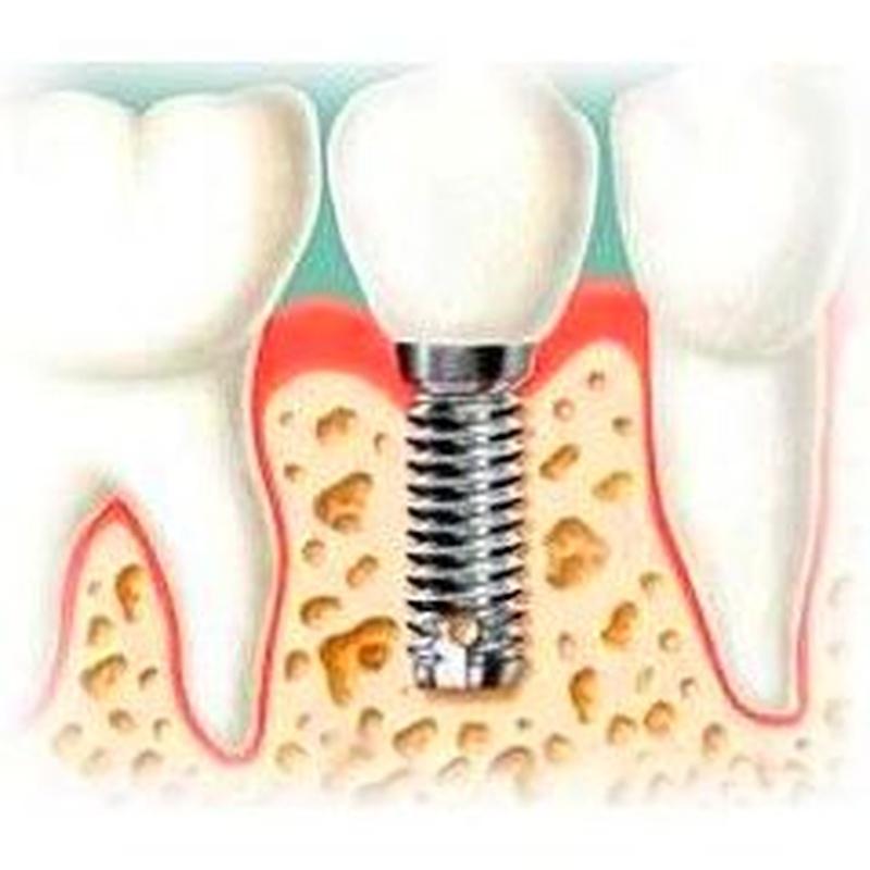 Cirugía dental: Servicios de Alser Dental