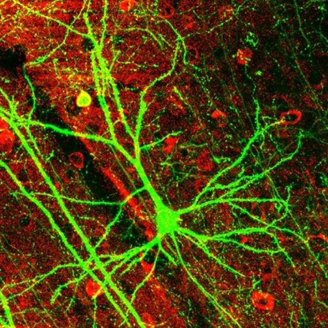 Neurología: origen en España y campo de acción