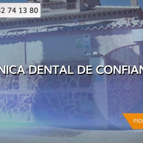 Implantes dentales precios en Gálvez | Dental Implantes