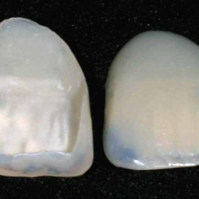 Qué tipos de carillas dentales existen
