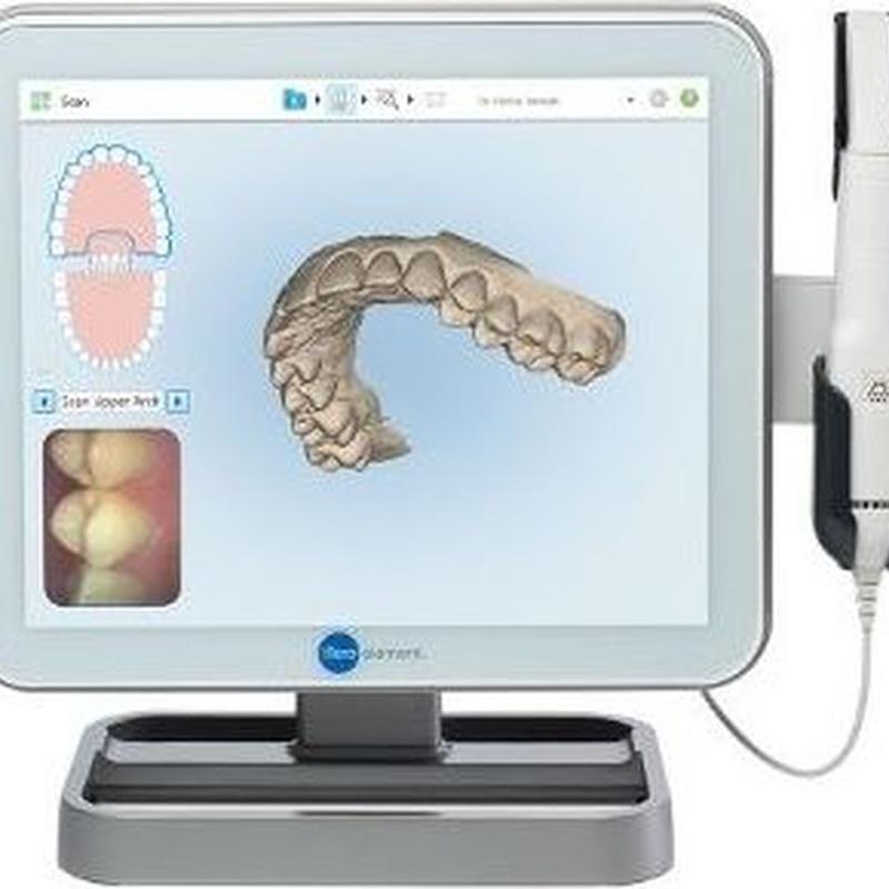 ESCÁNER DIGITAL 3D ITERO: Tratamientos de Clínica dental tres D