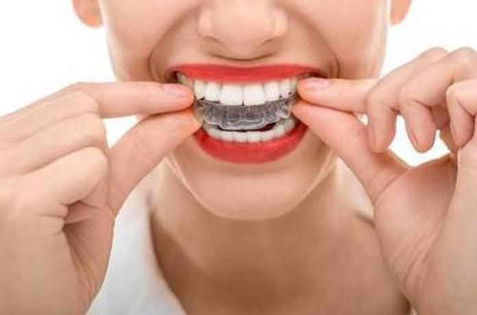 8 razones para llevar ortodoncia.