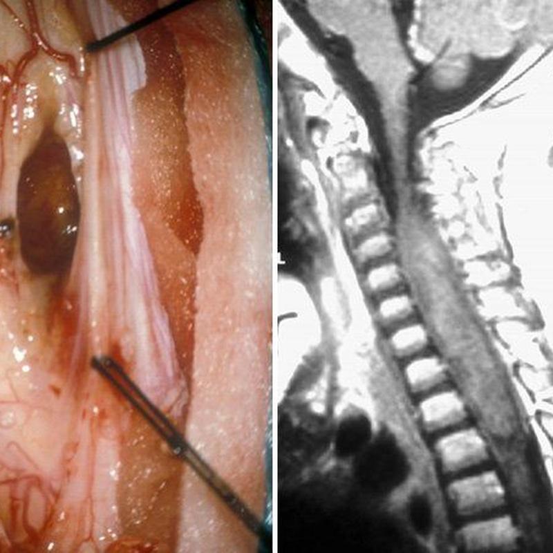 Patología raquimedular: Especialidades y publicaciones de Doctor Villarejo