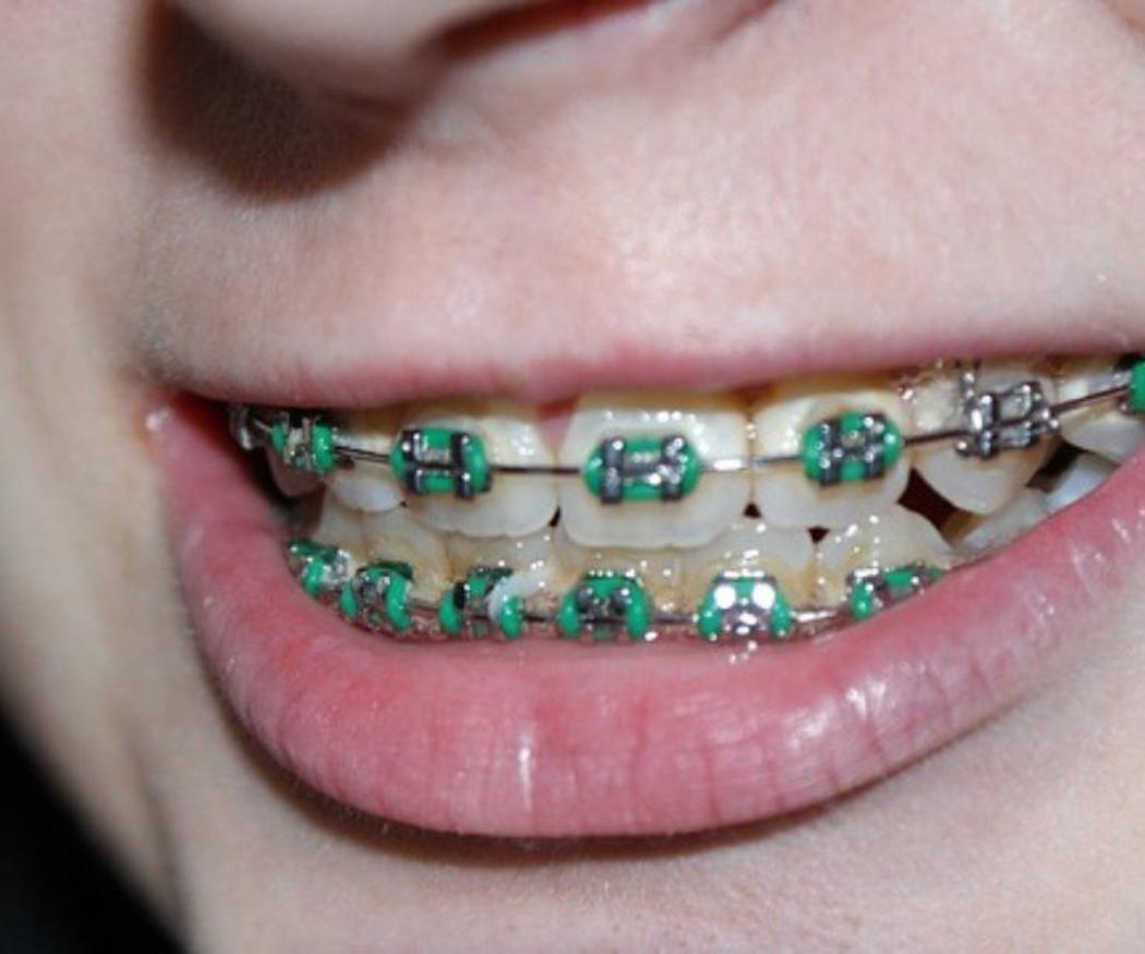 Ortodoncia y beneficios