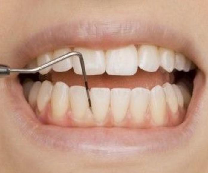 Periodoncia: Servicios de Clínica Dental Reina Victoria 23