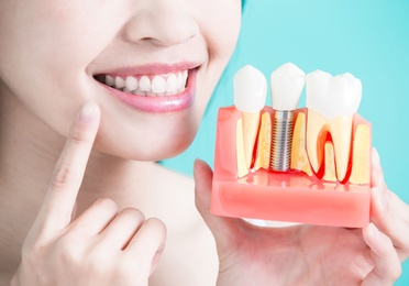 Intervención para implantes dentales