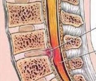 Hernias de columna