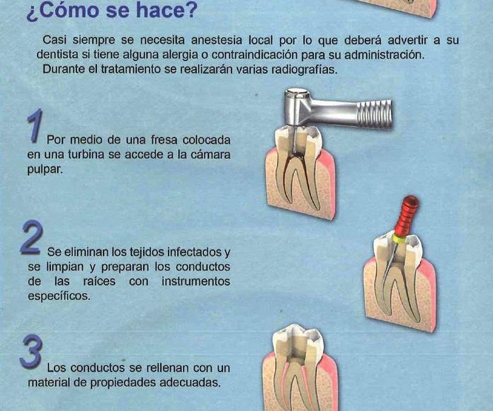 Que es una endodoncia