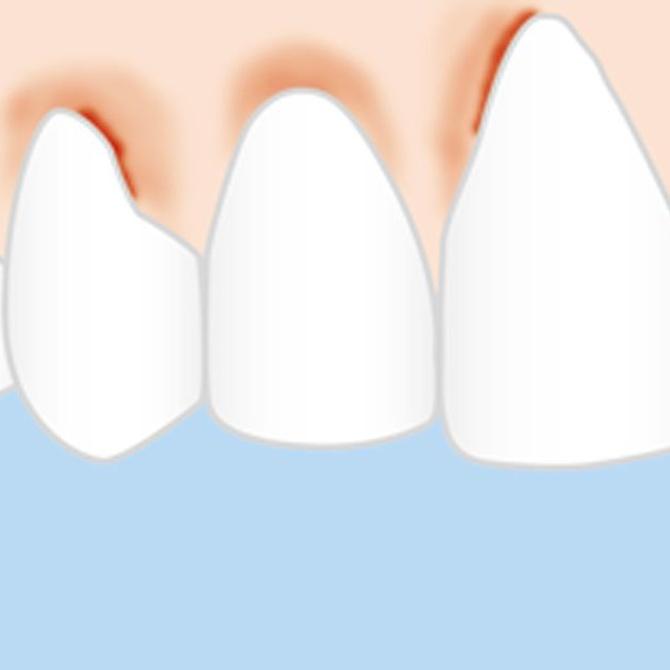 Cómo se puede prevenir la periodontitis