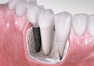 Implantes dentales en Coslada