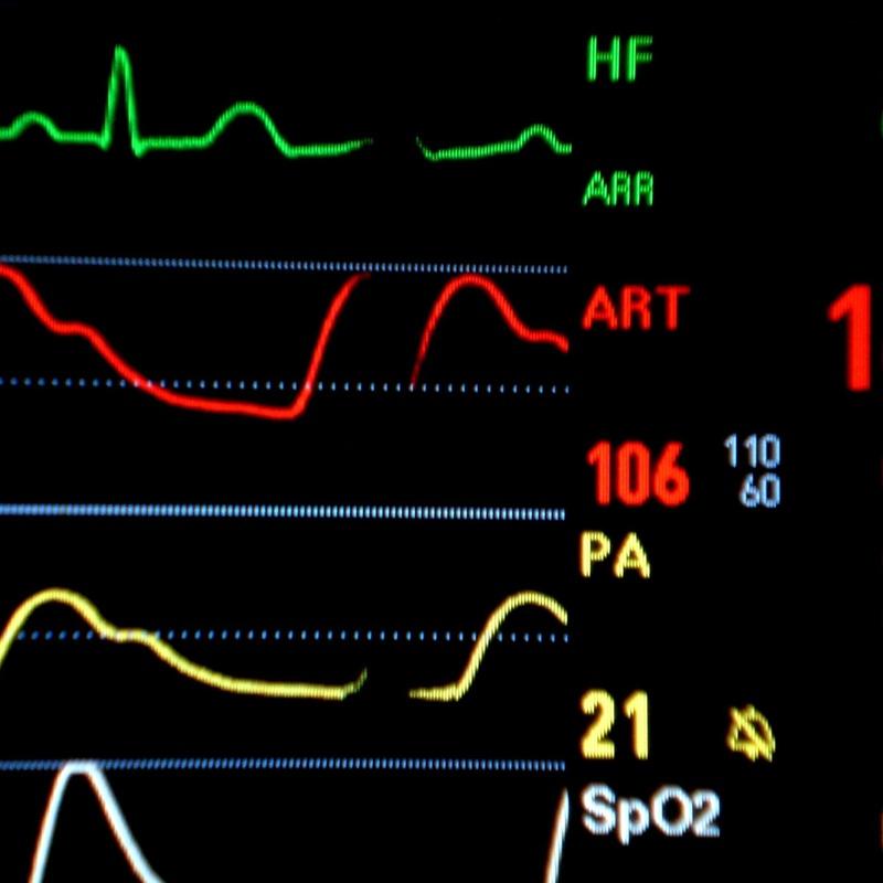 Toma de tensión arterial: Productos y servicios de Farmacia Cabanillas