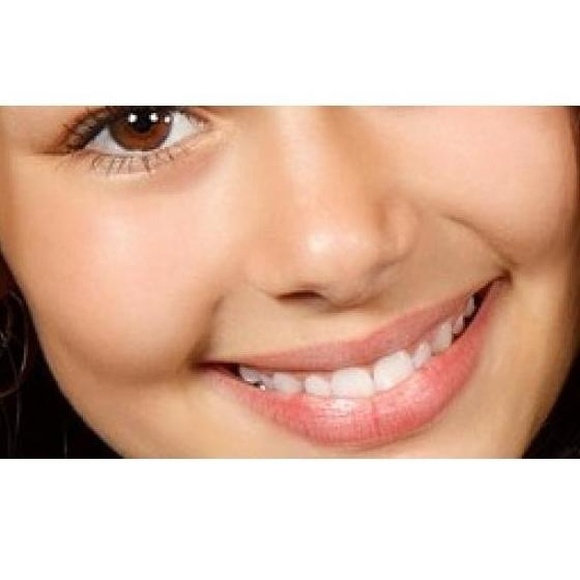 Carillas dentales: Tratamientos dentales de Clínica Dental Dres. Nuñez García