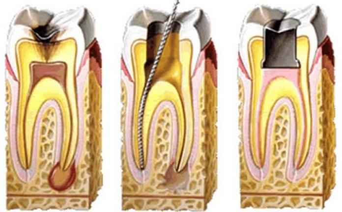 Endodoncia: Servicios de El Queixal del Seny